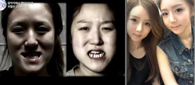 Korean Twin Sisters Unrecognizable After Plastic Surgery
